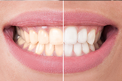 Teeth Whitening Scarborough - Before and after bleaching