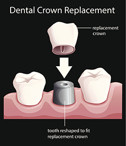 Crowns Scarborough - Dental crown replacement