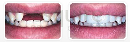 Dentist Scarborough ON - Dental Implants