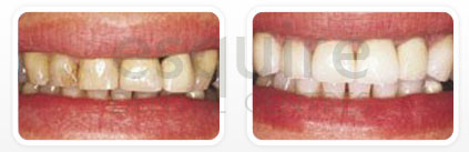 Dentist Scarborough ON - Laminate Veneers