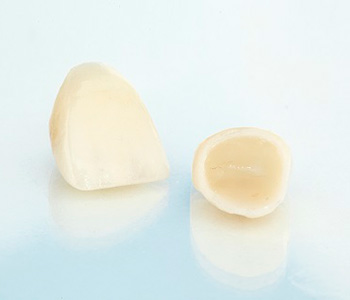 Bonded fillings in the Pickering area a beautiful, efficient way to repair cavities