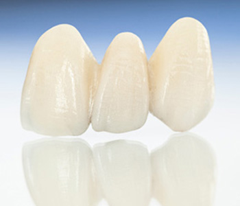 Achieve your best smile with dental care involving porcelain veneers in North York