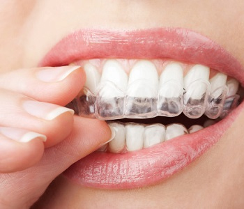 Avoid traditional braces with Invisalign treatment in Scarborough, ON