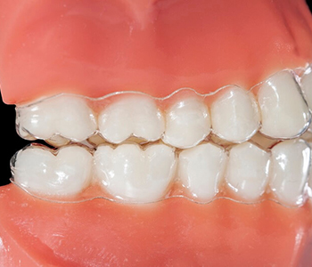 Cosmetic dentistry has alternatives to braces for patients near Scarborough