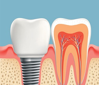 Dr. Amir Awadalla at Esquire Dental Center, Image Of Dental Implant