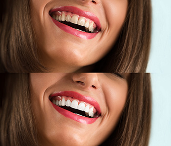 Your smile is not beyond repair! See what an experienced cosmetic dentist in Scarborough can do for you