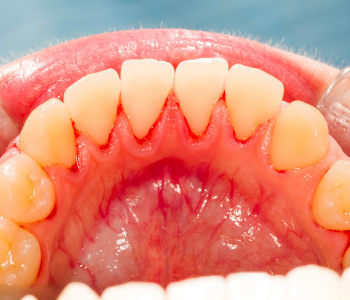 What can be expected from gum disease treatment in Pickering