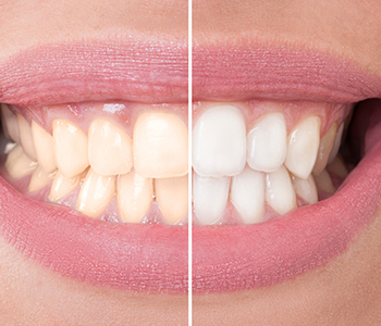 Identifying internal and external stains for teeth whitening near Pickering