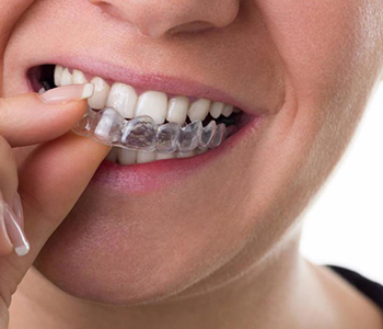Invisalign from your North York dentist improves your appearance and oral health