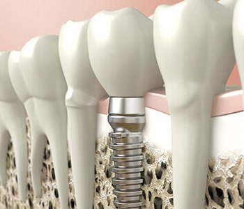 M1P 2S1 area dentist explains the advantages of placing dental implants