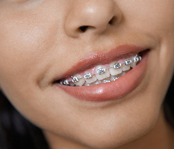 Scarborough, ON area patients can enjoy orthodontic treatment at Esquire Dental Centres