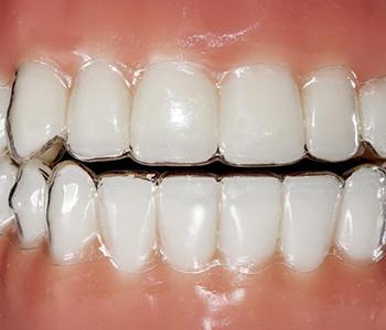 Dr. Amir Awadalla at Esquire Dental Center, Orthodontics Dentist