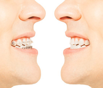 Ten things you should know about Invisalign invisible aligners in Scarborough