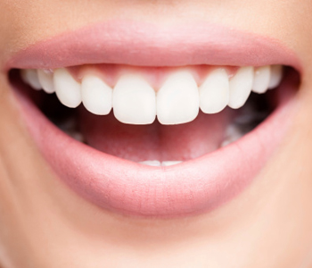 What are the steps used by a teeth whitening dentist near me in Scarborough?