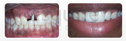 Before and After Treatment Of Implant