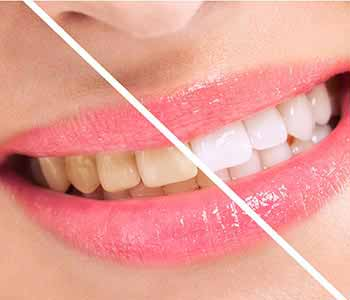 How to fix discolored teeth using professional whitening services from Scarborough dentist