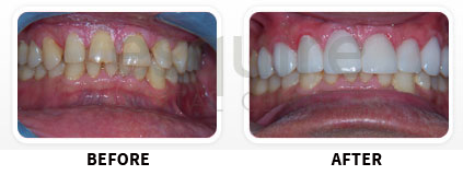 Cosmetic Dentistry Before After Image