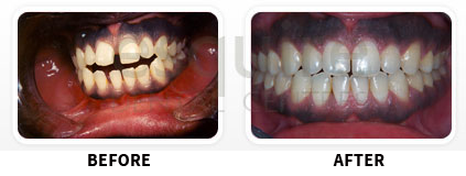 Orthodontics Before After Image 01