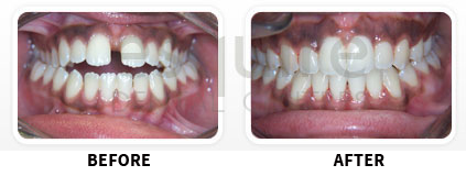 Orthodontics Before After Image 03