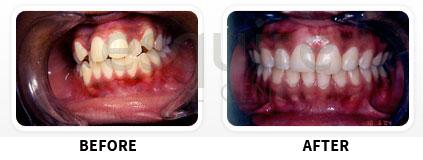 Orthodontics Before After Image 04