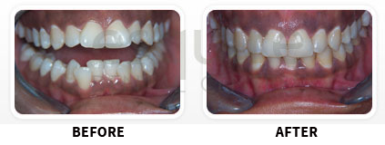 Orthodontics Before After Image 05