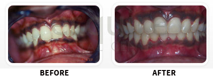 Orthodontics Before After Image 07