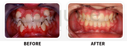 Orthodontics Before After Image 08