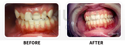 Orthodontics Before After Image 09