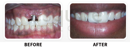 Dental Implants Before After image 01