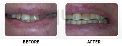 Dental Implants Before After image 02