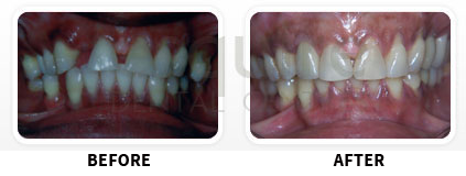 Dental Implants Before After image 03