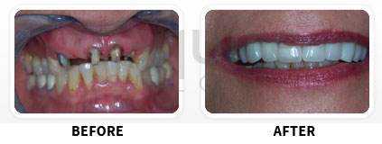 Dental Implants Before After image 04