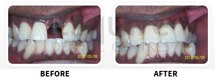 Dental Implants Before After image 06