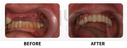 Dental Implants Before After image 07