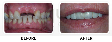 Dental Implants Before After image 08