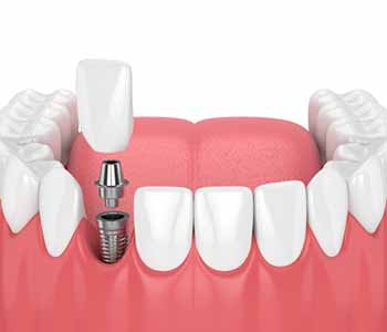 Dentist in North York, ON describes the advantages of dental implants over dentures and bridges