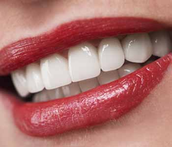 Scarborough area dentist offers several methods of professional teeth whitening