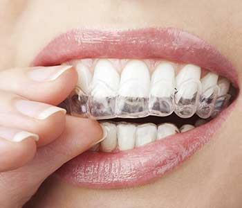 Invisalign is a discreet orthodontic service available for adults in North York
