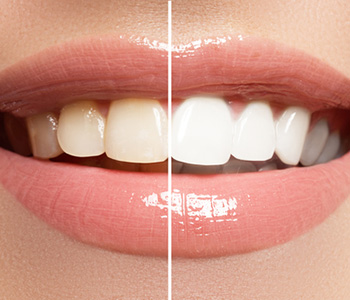 Teeth Whitening Services in Scarborough, ON area